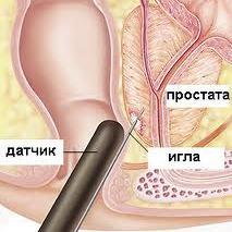 Рак 2 степени предстательной железы излечимо или нет