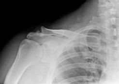 Мази гели при шейном остеохондрозе
